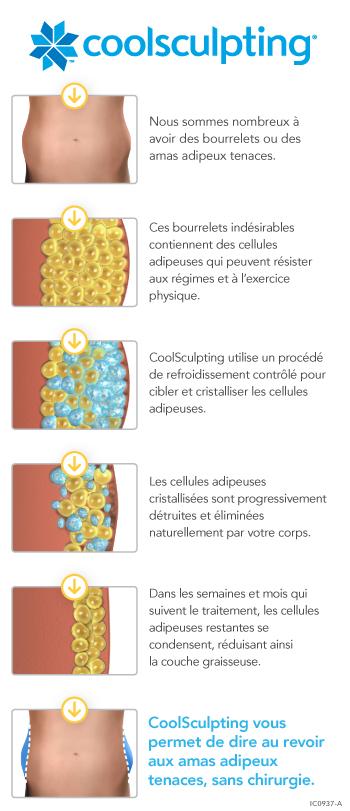 Cryolipolyse - la technique - cabinet-fyon-favli.com