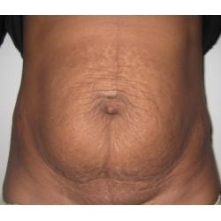 Abdominoplastie : cicatrice en T , diastasis abdominal post grossesse gemellaire.
