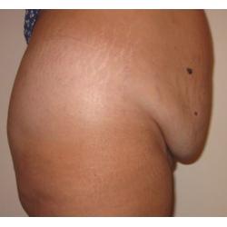 Traitement chirurgical d'un tablier abdominal