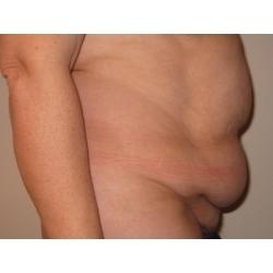 Abdominoplastie : traitement chirurgical d'un tablier abdominal.
