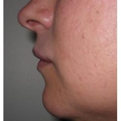 Volume et avancée d'une lèvre supérieure en retrait par acide hyaluronique.
