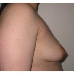 Asymetrie mammaire avec ptose