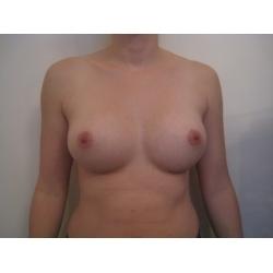 augmentation mammaire par prothèses anatomiques sous musculaires , 370 cc, voie sous mammaire
