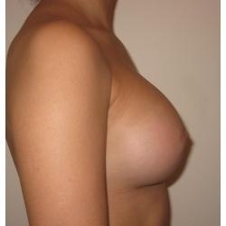 Augmentation mammaire par prothèses rondes, rétro musculaires  profil modéré, voie sous- mammaire