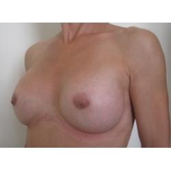 Augmentation mammaire par prothèses rondes, rétro musculaires  profil modéré, voie trans-aréolaire avec réduction des mamelons