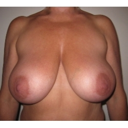 Hypertrophie mammaire moderée