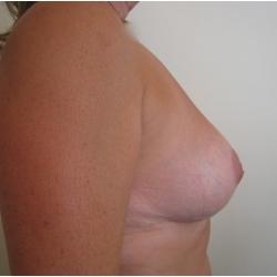 Réduction mammaire bilatérale