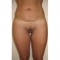 Liposuccion abdominale.