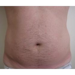liposuccion abdominale de l'homme