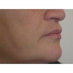 lipostructure du bas du visage (lèves sup et inf, joues, menton)