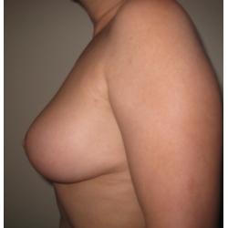 Correction de ptose mammaire avec légère réduction