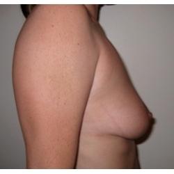 Ptose mammaire modérée