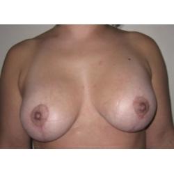 Correction Ptose mammaire  + prothèses : cicatrices en T inversé (ancre marine)