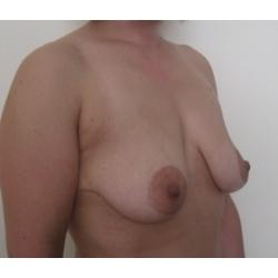 Ptose mammaire asymétrique