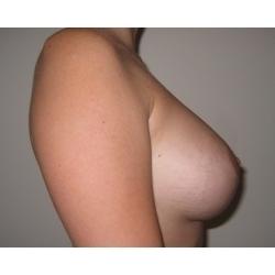 Correction Ptose mammaire  + prothèses : cicatrices péri-aréolaire et verticale