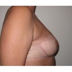 Reconstruction mammaire par lambeau de grand dorsal avec prothèse