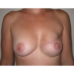 Reconstruction mammaire par prothèse.